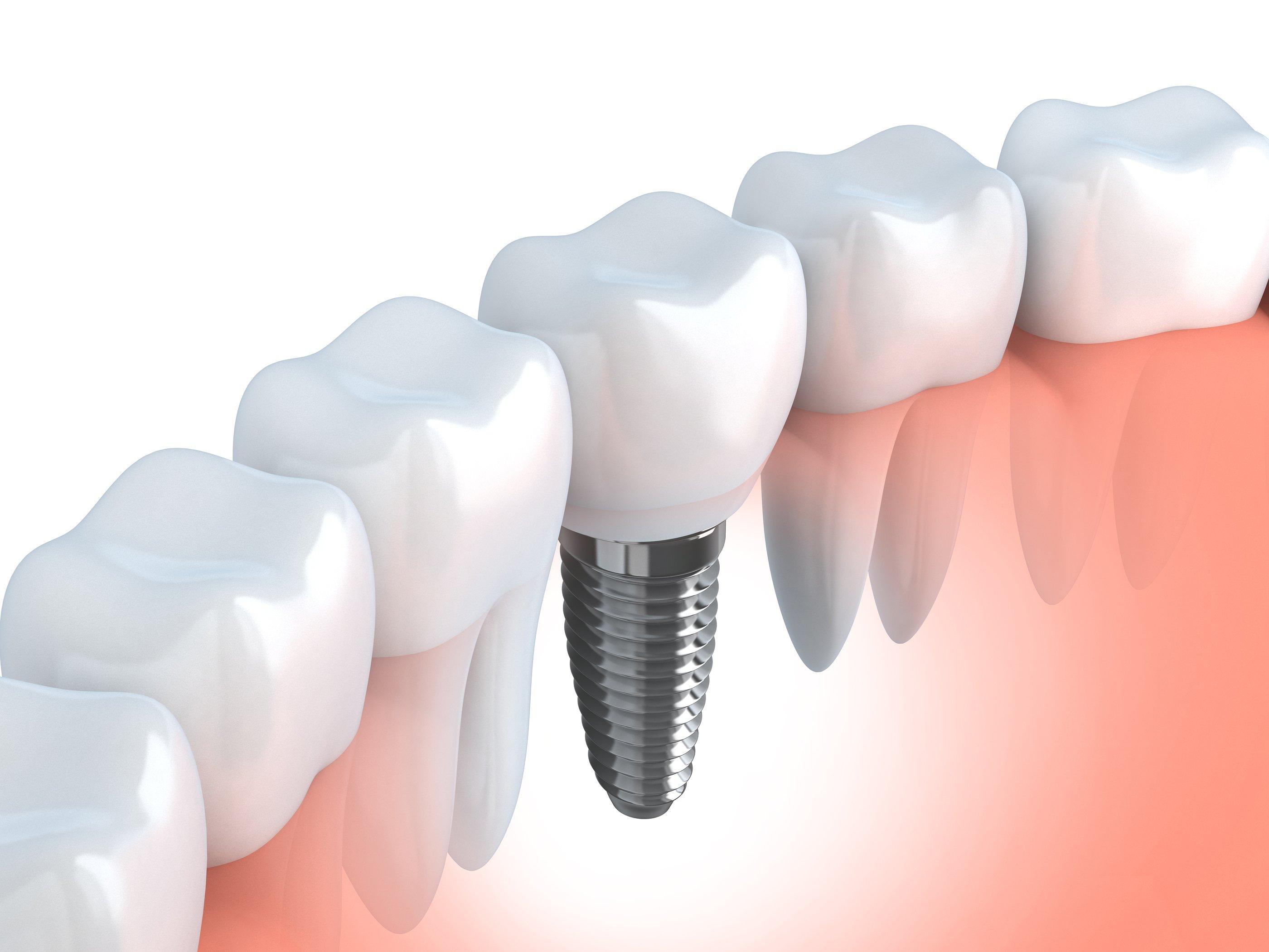 Bradford-Family-Dentistry-Implane