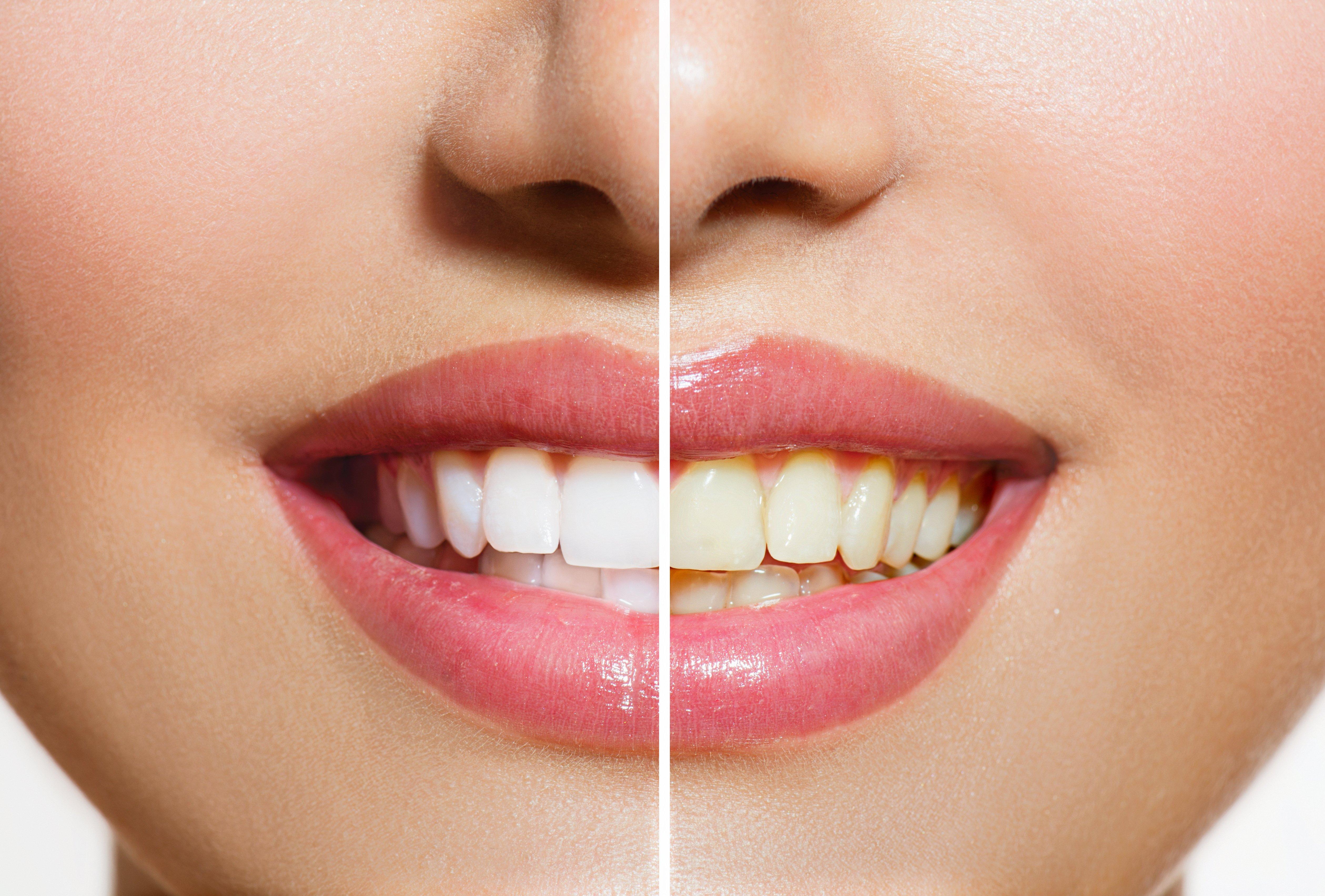 Bradford Family Dentistry Teeth Whitening