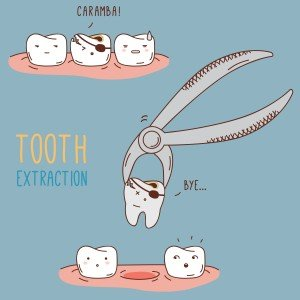 Bradford Family Dentistry tooth extraction