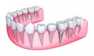 Bradford Dental Implants How it works