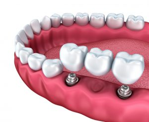 Bradford Dental Implants Bridge Diagram