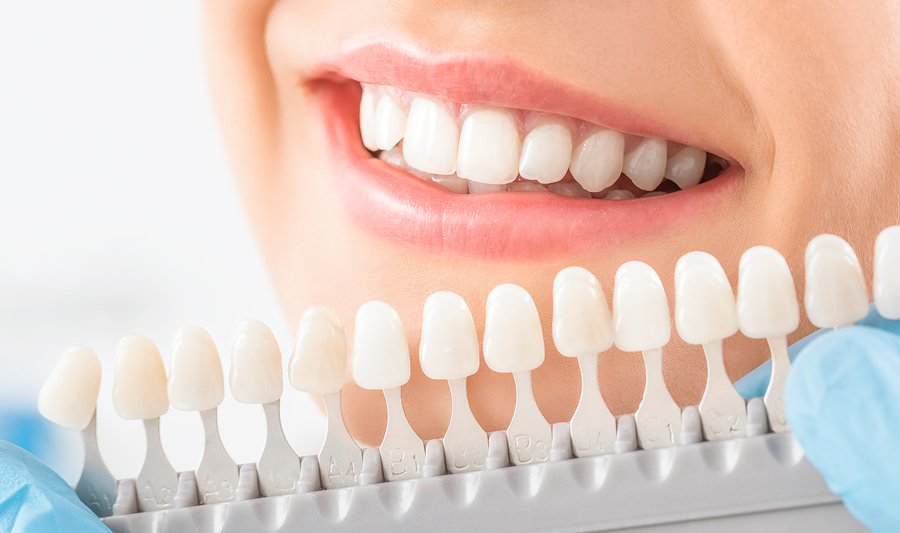 Dental Implants Bradford