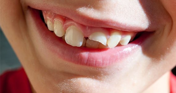 Tooth Issues - Broken Tooth hero small - Bradford dentist