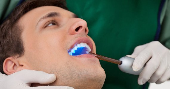Dental Bonding Treatment