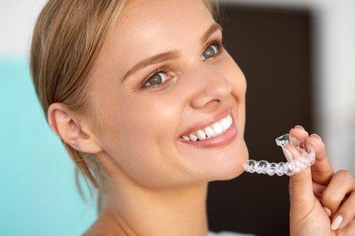 braces cost