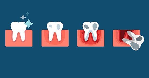 Gum Disease, Gum Disease