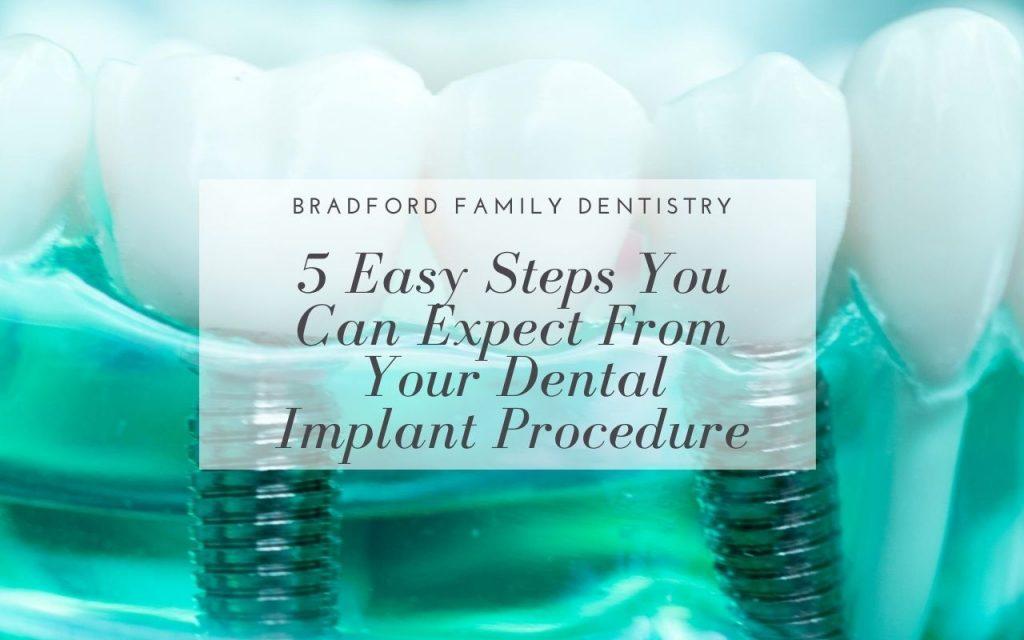 5 Easy Steps Dental Implant Procedure - Bradford Family Dentist