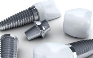 5 Easy Steps You Can Expect From Your Dental Implant Procedure - Dental Implant Components Bradford Family Dentist - Bradford dentist