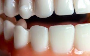 Why Choose Dental Implants - Bradford Family Dentist