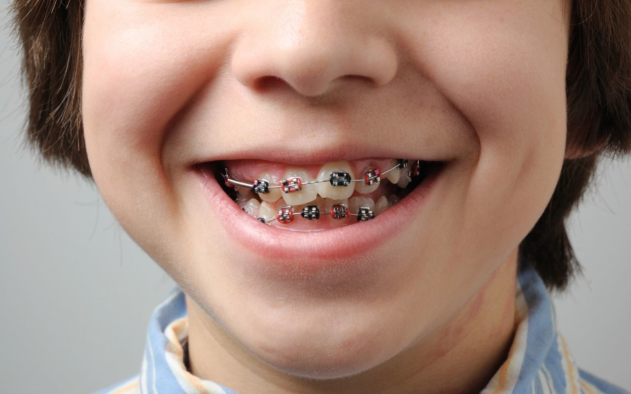 Candidates-for-Clear-Aligners-Bradford-Dentist
