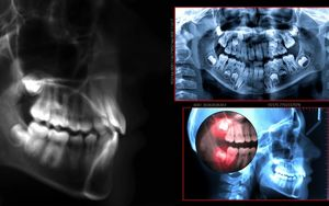 Digital-Radiography-Latest-Technology-in-Dental-Care-Bradford-Dentist