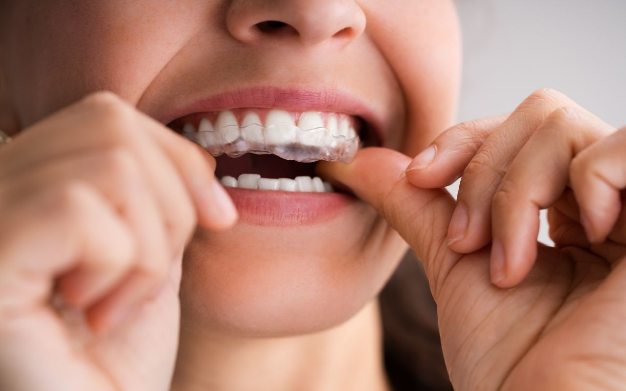 Invisible-Clear-Aligners-Bradford-Dentist
