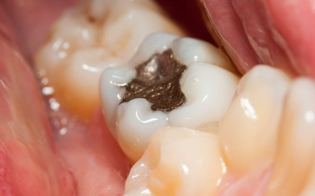 amalgam-fillings-Bradford-Family-Dentistry